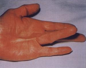 contracture